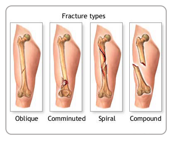 Different Types of Fractures