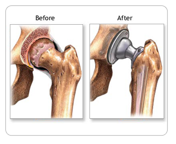 Hip Before and After Total Hip Replacement Surgery