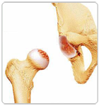 Damaged Portions of Labrum and Femoral Head