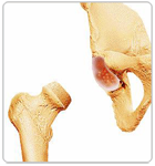 Removing the Damaged Part of Femoral Head