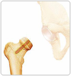 Resurfacing the Femoral Head