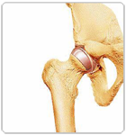 Stages of Hip Resurfacing