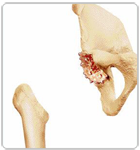 Removing the Damaged Part of Femoral Head - Dr Niraj Vora