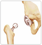 Inserting the Ball of Femoral Head - Dr Niraj Vora