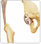Lower Bone of Hip Before Implant - Dr Niraj Vora