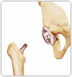 Stages of Hip Replacement