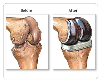 Knee Before and After Knee Joint Replacement Surgery
