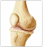 Damaged Portions of the Femur and Cartilage